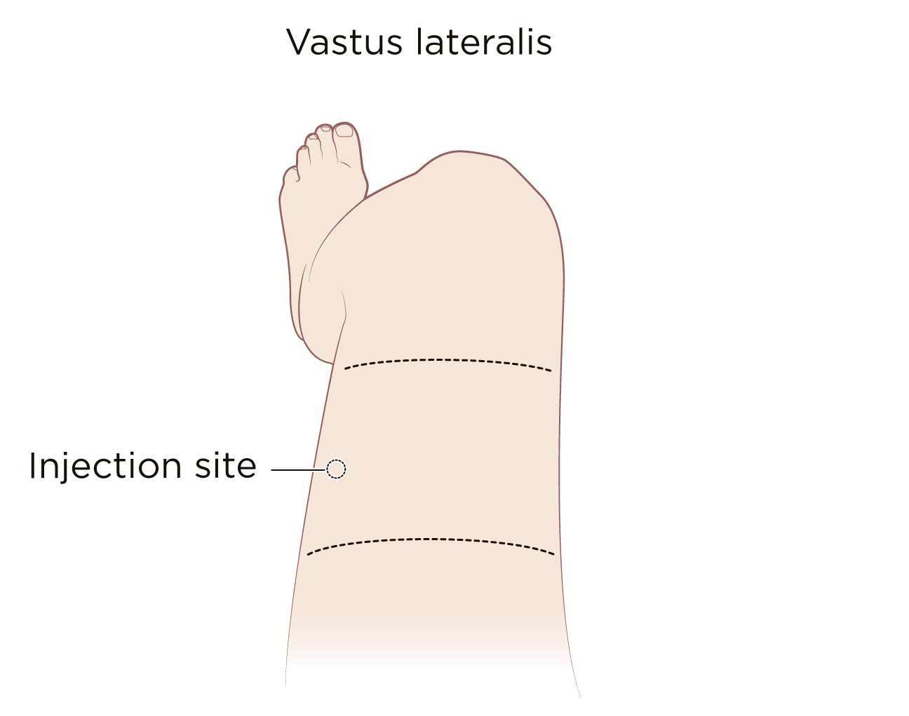 Vastus lateralis muscle of the thigh